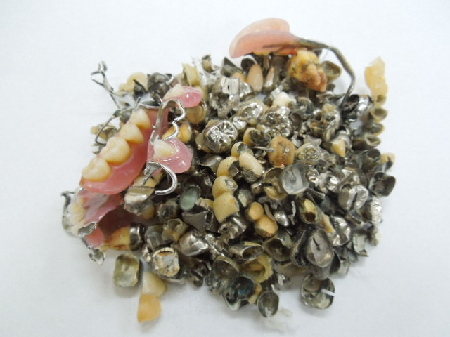 歯科金属屑の撤去冠