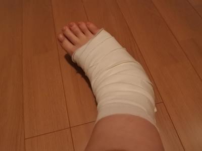 足の捻挫の場合